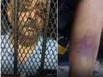 Mehul Choksi Seen In Dominica Police Custody In New Photo